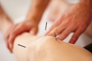 Dry Needling North Brisbane