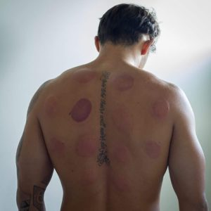 Cupping therapy, Brisbane clinic